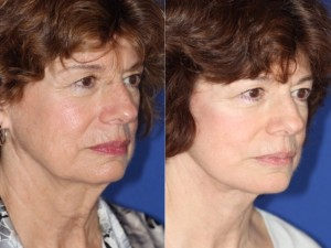 facelift and neck lift right