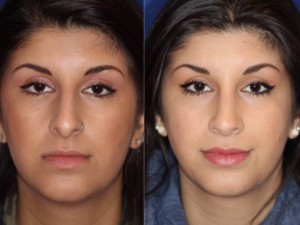 Rhinoplasty front view