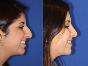 Rhinoplasty side view smile