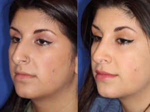 rhinoplasty 3/4 view